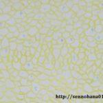 オーラ、第7層、ケセリックテンプレート、黄色、網状、網目
